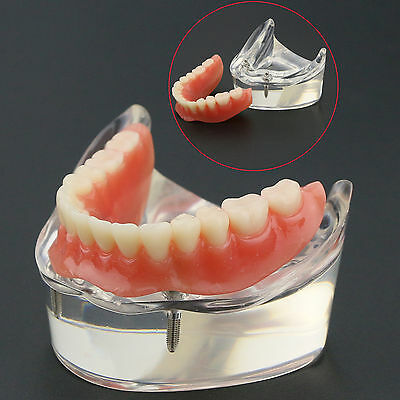 Dental Model #6002 01 Overdenture Inferior 2 Implants Restroration Study
