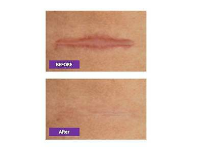 15x12cm! CICA-CARE Gel Sheet SCAR REDUCTION. 100% eBayer☆