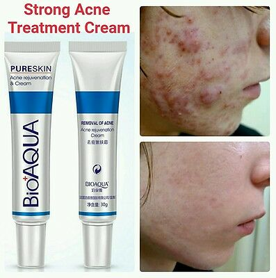 Strong Acne Treatment Cream Acne Scar Removal Cream Blemish Spots Stretch Marks