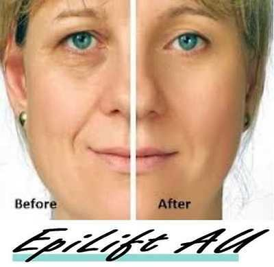 Best Instant Facelift Anti Wrinkle Cream EpiLift Skin Looks 10-15 years younger