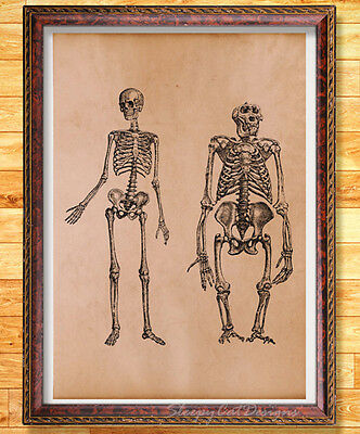 Skeletons Art Print on Handmade Antique Page Vintage Medical Illustration
