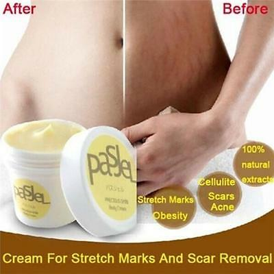 Cream For Stretch Marks&Scar Removal Powerful To Stretch Marks Maternity Repair