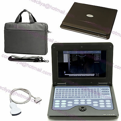 Full Digital Portable laptop machine ultrasound scanner 3.5MHZ Convex probe,CE