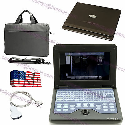USA CE Portable Notebook Laptop Ultrasound machine Scanner system+3.5mhz Convex