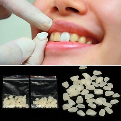 100 Pcs Dentali Faccette Resin Temporary Patch Teeth Superiore + Inferiore
