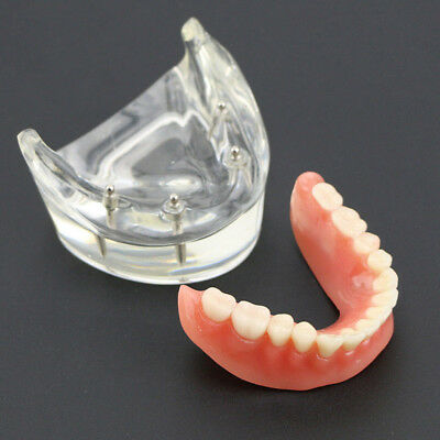Dental Overdenture Inferior Teeth Model with 4 Implants Restoration Model