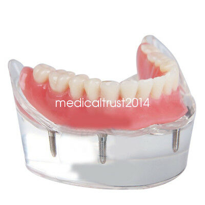 dentist use Dental tooth Model Overdenture removable Inferior +4 Implants Demo