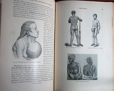 ~Rare early Medical Monsters & Freaks / Human Oddities Cases Illustrated Book