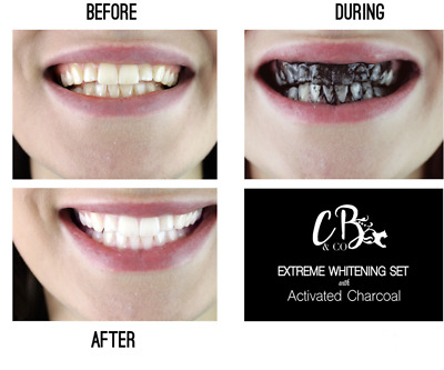 Extreme Teeth Whitening Gel with Activated Charcoal - MADE IN THE UK