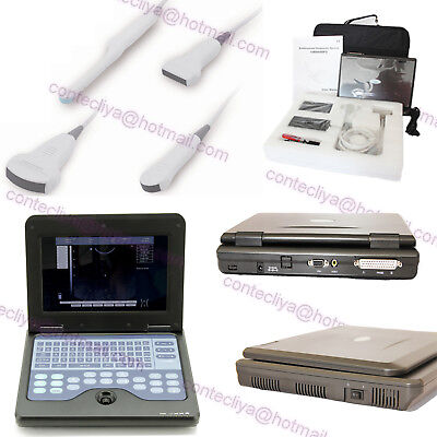 CE Digital Portable Ultrasound Scanner Laptop Diagnostic Machine With 4 Probes