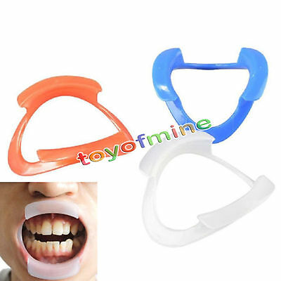 10pcs O-type Dental Teeth Whitening Cheek Retractor Lip Mouth Opener