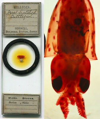 Cuttlefish - Just Hatched - Microscope Slide, by Hornell