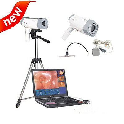 Electronic Colposcope CCD Digital Video SONY 800,000 with Software Medical Tool