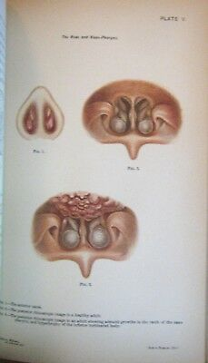 Rare Antique Medical Book Over 100 years Old! Color Plates Diseases Deformities