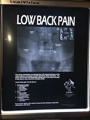 X-ray Film 14x17 Low Back Pain Patient Education Review of Findings Sold Out!!