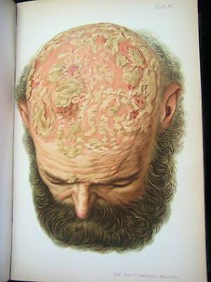 Rare Antique Medical Book Over 100 years Old! Lithographs Skin Diseases Freaks