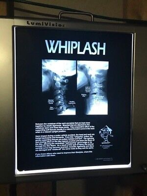 X-ray Film 14x17 Whiplash Patient Education Review of Findings Sold Out!!