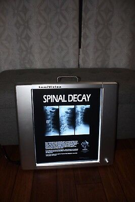 Chiropractic X-ray Film Patient Education Review of Findings Sold Out!!