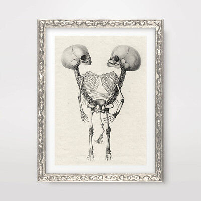 SIAMESE CONJOINED TWIN SKELETON ART PRINT POSTER !! Weird Strange Decor Picture