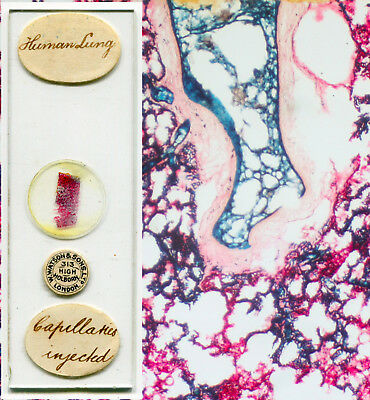 Human Lung - Capilaries Injected - Microscope Slide by Watson & Sons