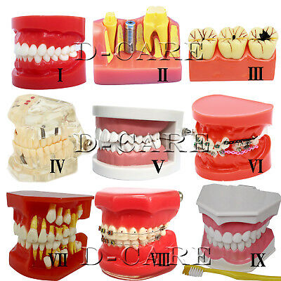 Dental Implant Study Analysis Demonstration Teeth Teaching Model All Sizes