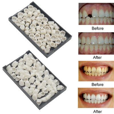 50Pcs Dental Temporary Crown Veneers Anteriors Front Synthetic Resin Teeth