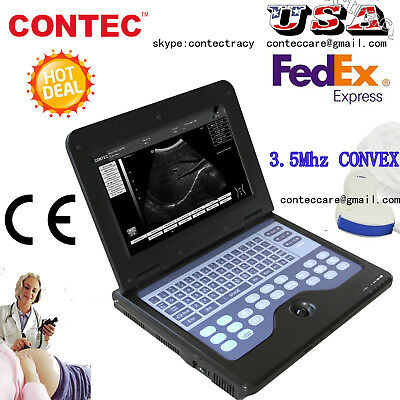 Hot Portable laptop machine Digital Ultrasound scanner,3.5 Convex probe,US FEDEX