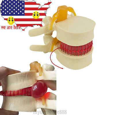 US STOCK  Medical Lumbar Spine Model Disc Herniation demonstration teach model