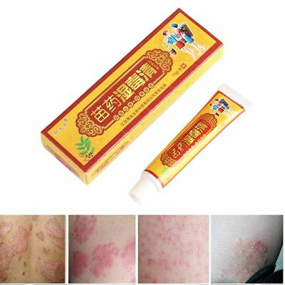 15g Dermatitis Ointment Pruritus  Relief Chinese Herbal Ointiment Eczema Cream