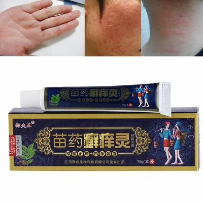 Chinese Herbal Formula Psoriasis Dermatitis Eczema Psoriasis Cream Ointment Hot