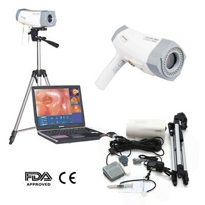 Electronic Colposcope Colposcopy Digital Sony Video 850,000 Camera Health+ GIFT