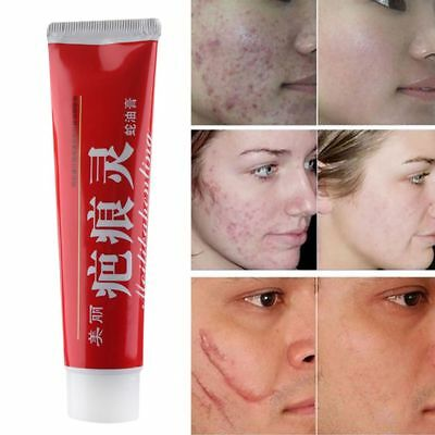 Acne Treatment Scar Remove Cream Snake Essence Ointment Stretch Marks Repair