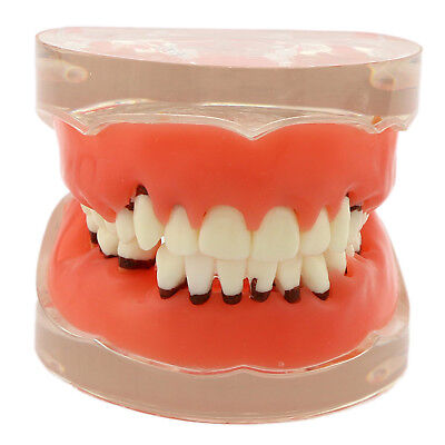 Dental Model Adult Pathological Periodontal disease Study/Teach Teeth 4017#