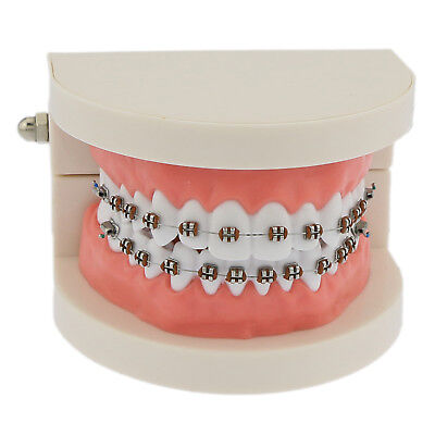 Dental Teeth Model Teach Typodont Demonstration with Braces Wire #5006