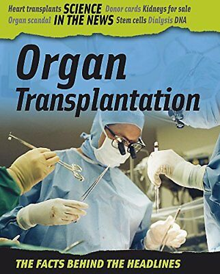 Science in the News: Organ Transplantation By Andrew Campbell
