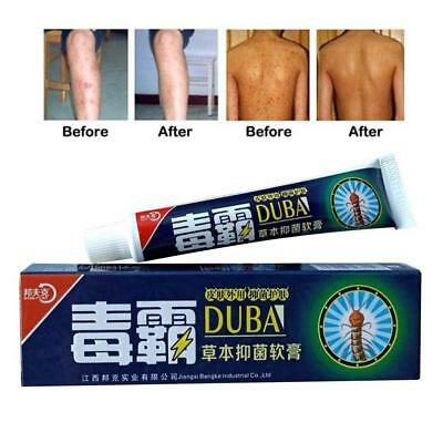 For Dermatitis and Eczema Psoriasis Psoriasis Ointment Itching Plant-Based Cream