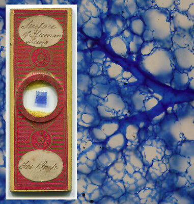 Human Lung by C.M. Topping Microscope Slide