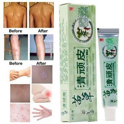 Chinese Herbal Psoriasis Ointment Dermatitis Pruritus Relief Eczema Skin 2019