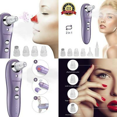 Blackhead Remover With Mist Spray Stonepack Electronic Pore Vacuum Facial Pore