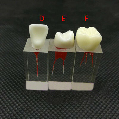 3Pc Dental Tooth Root Canal Model For RCT Practice Pulp Cavity Clear Red 3size