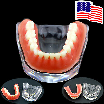 Dental Overdenture Teeth Model Inferior Precision Implant Gold Silver Bar US