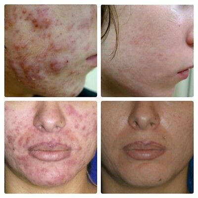 With Hyaluronic Acid Strong Dark Spots Acne Scar Removal Cream Clarifying skin