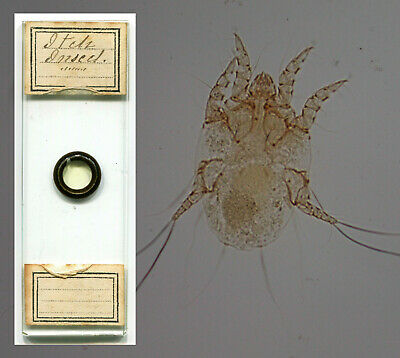 "Scabies Mite ""Itch Insect"" by Amos Topping Microscope Slide"