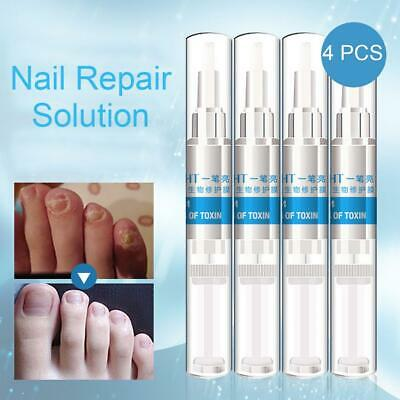 4PCS Anti-Fongique Solution Infection Nail Bright Pencil Treatment Anti Fungus