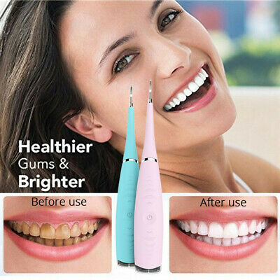 UK Ultrasonic Teeth Cleaning Tooth Calculus Tartar Stain Remover Dental Cleaner