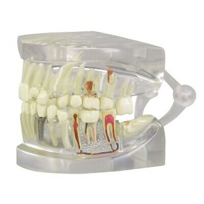 Transparent Jaw with Teeth Model