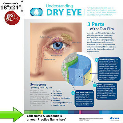"Understanding Dry Eye Poster for Patient Education ""Must See"" Wall Chart"