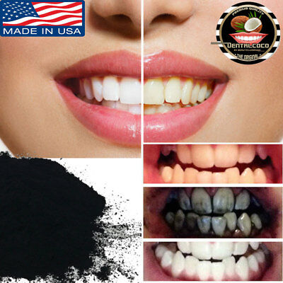 Hollywood White Teeth In 2 Weeks Dental Coco 10G Super Whitener !