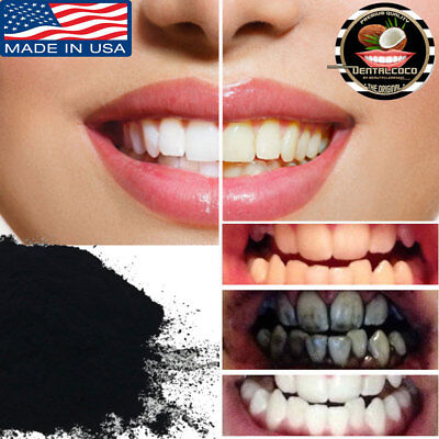 WHITE TEETH |Activated Charcoal 2OZ,WHITENING,whitener,carbon,dental,coconut.NEW