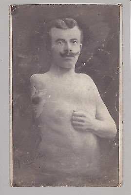 Rare Antique Photograph - Man With Amputated Arm - Medical History - Unusual